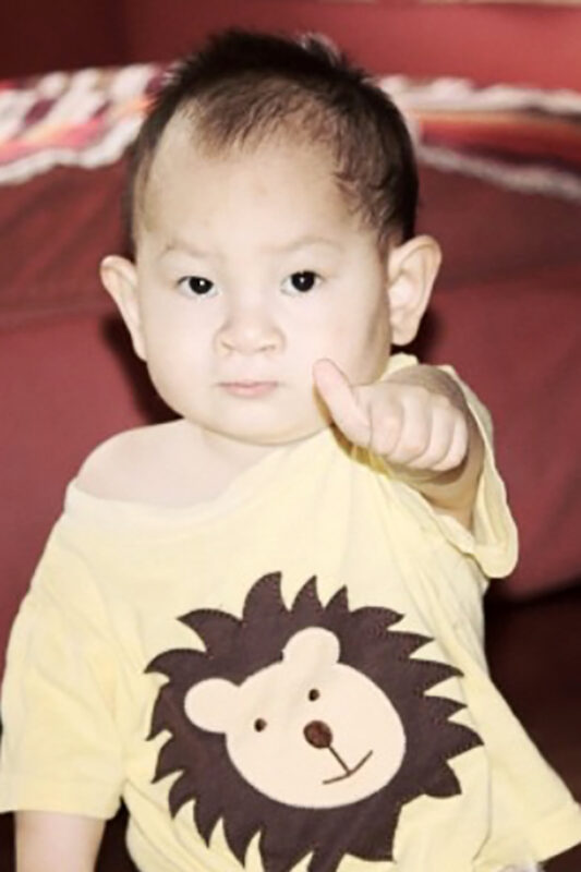 Jamie as a toddler at SFCV post cleft lip surgery