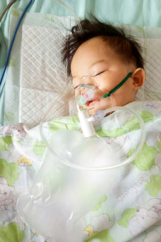 infant in hospital post cleft surgery
