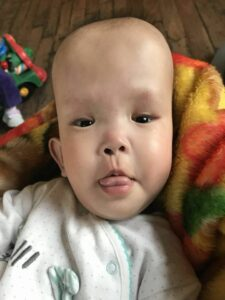 Jean Marie with hydrocephalus